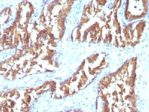 Immunohistochemistry (Formalin/PFA-fixed paraffin-embedded sections) - Anti-IDH1 antibody [IDH1/1152] - BSA and Azide free (ab212470)