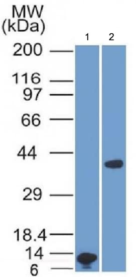 Western blot - Anti-Arginase antibody [ARG1/1125] - BSA and Azide free (ab212522)