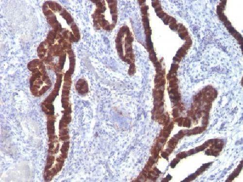Immunohistochemistry (Formalin/PFA-fixed paraffin-embedded sections) - Anti-Cytokeratin 7 antibody [K72.7] - BSA and Azide free (ab212527)