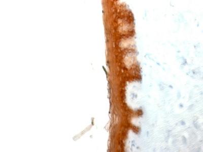 Immunohistochemistry (Formalin/PFA-fixed paraffin-embedded sections) - Anti-Cytokeratin 10 antibody [KRT10/844] - BSA and Azide free (ab212546)