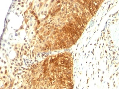 Immunohistochemistry (Formalin/PFA-fixed paraffin-embedded sections) - Anti-Cytokeratin 14 antibody [LL002] - BSA and Azide free (ab212547)
