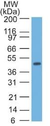 Western blot - Anti-Cytokeratin 17 antibody [SPM560] - BSA and Azide free (ab212552)