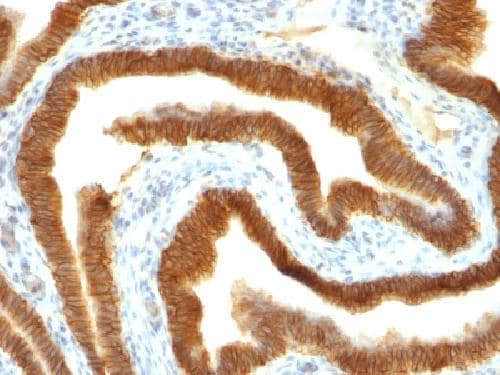 Immunohistochemistry (Formalin/PFA-fixed paraffin-embedded sections) - Anti-EpCAM antibody [MOC-31] - BSA and Azide free (ab212584)