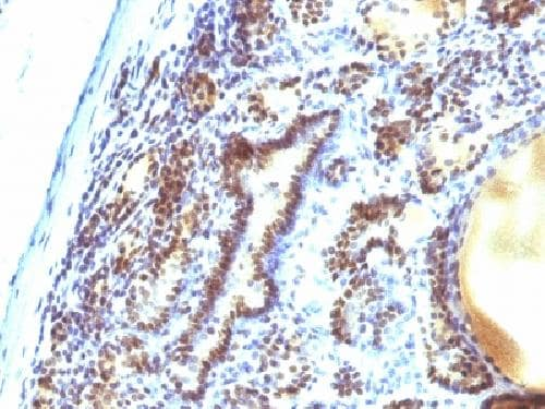 Immunohistochemistry (Formalin/PFA-fixed paraffin-embedded sections) - Anti-MAP3K1 antibody [2F6] - BSA and Azide free (ab212601)