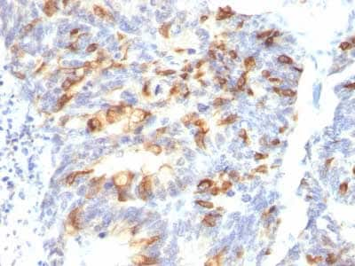 Immunohistochemistry (Formalin/PFA-fixed paraffin-embedded sections) - Anti-MUC2 antibody [MLP/842] - BSA and Azide free (ab212635)