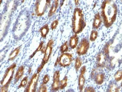 Immunohistochemistry (Formalin/PFA-fixed paraffin-embedded sections) - Anti-Gastric Mucin/MUC-6 antibody [MUC6/916] - BSA and Azide free (ab212648)