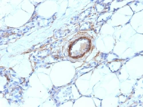 Immunohistochemistry (Formalin/PFA-fixed paraffin-embedded sections) - Anti-smooth muscle Myosin heavy chain I antibody [MYH11/923] - BSA and Azide free (ab212660)