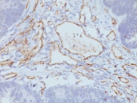 Immunohistochemistry (Formalin/PFA-fixed paraffin-embedded sections) - Anti-CD31 antibody [C31.3 + JC/70A] - BSA and Azide free (ab212711)