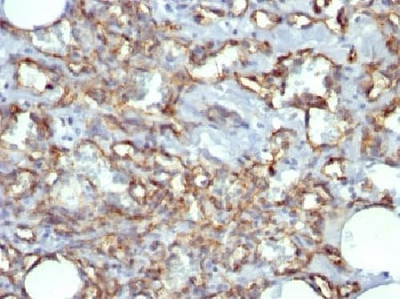 Immunohistochemistry (Formalin/PFA-fixed paraffin-embedded sections) - Anti-CD31 antibody [JC/70A] - BSA and Azide free (ab212712)