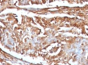 Immunohistochemistry (Formalin/PFA-fixed paraffin-embedded sections) - Anti-beta 2 Microglobulin antibody [B2M/961] - BSA and Azide free (ab212756)