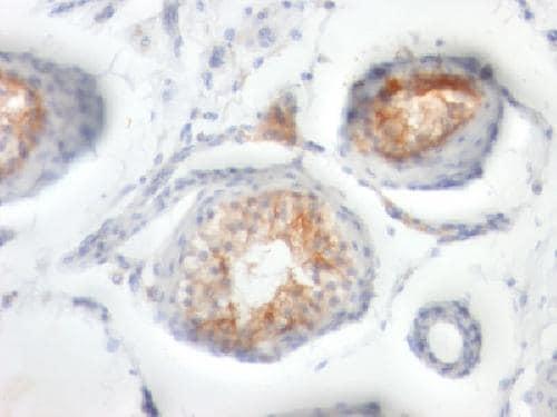 Immunohistochemistry (Formalin/PFA-fixed paraffin-embedded sections) - Anti-CD147 antibody [BSG/963] - BSA and Azide free (ab212856)