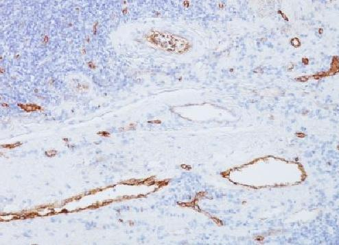Immunohistochemistry (Formalin/PFA-fixed paraffin-embedded sections) - Anti-Von Willebrand Factor antibody [3E2D10] - BSA and Azide free (ab212946)