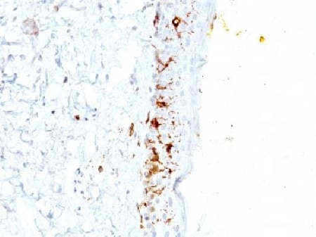 Immunohistochemistry (Formalin/PFA-fixed paraffin-embedded sections) - Anti-CD1a antibody [C1A/711] - BSA and Azide free (ab212982)