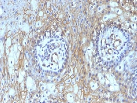Immunohistochemistry (Formalin/PFA-fixed paraffin-embedded sections) - Anti-CD59 antibody [MACIF/629] - BSA and Azide free (ab213087)