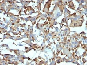 Immunohistochemistry (Formalin/PFA-fixed paraffin-embedded sections) - Anti-CD68 antibody [KP1 + C68/684] - BSA and Azide free (ab213099)