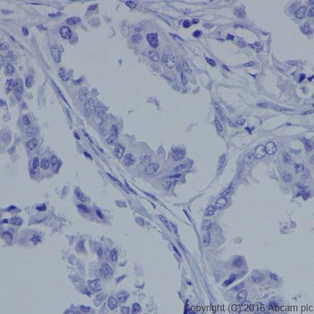 Immunohistochemistry (Formalin/PFA-fixed paraffin-embedded sections) - Anti-MASH1/Achaete-scute homolog 1 antibody [EPR19592] (ab213151)