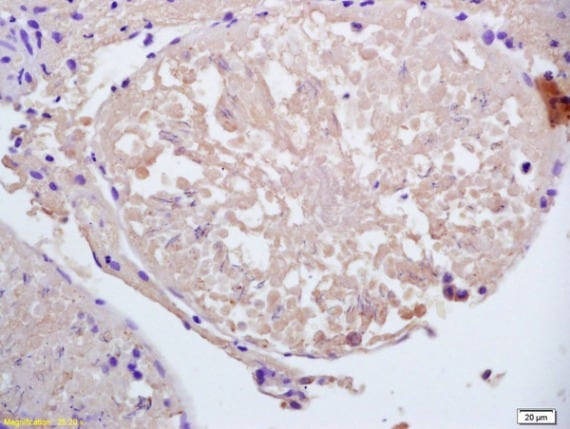 Immunohistochemistry (Formalin/PFA-fixed paraffin-embedded sections) - Anti-CCDC11 antibody (ab213153)