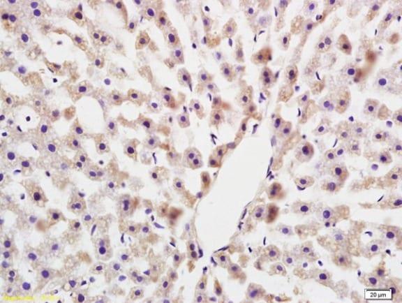 Immunohistochemistry (Formalin/PFA-fixed paraffin-embedded sections) - Anti-COLEC10 antibody (ab213156)