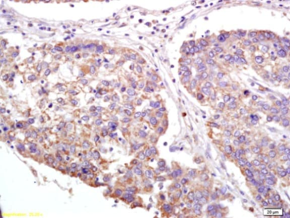 Immunohistochemistry (Formalin/PFA-fixed paraffin-embedded sections) - Anti-XAGE2 antibody (ab213157)