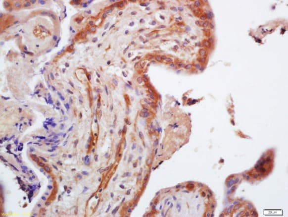 Immunohistochemistry (Formalin/PFA-fixed paraffin-embedded sections) - Anti-TRIM29 antibody (ab213158)