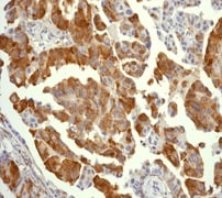 Immunohistochemistry (Formalin/PFA-fixed paraffin-embedded sections) - Anti-RPS6 (phospho S235) antibody [EP1338(2)Y] - BSA and Azide free (ab213165)