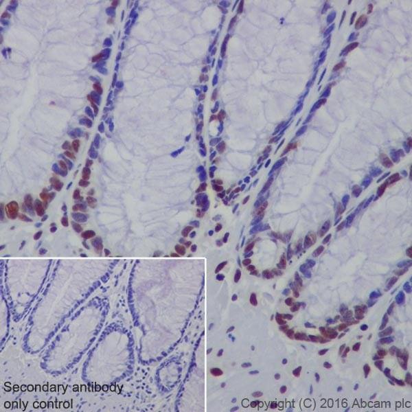 Immunohistochemistry (Formalin/PFA-fixed paraffin-embedded sections) - Anti-HP1 gamma/CBX3 antibody [EPR19803] (ab213167)
