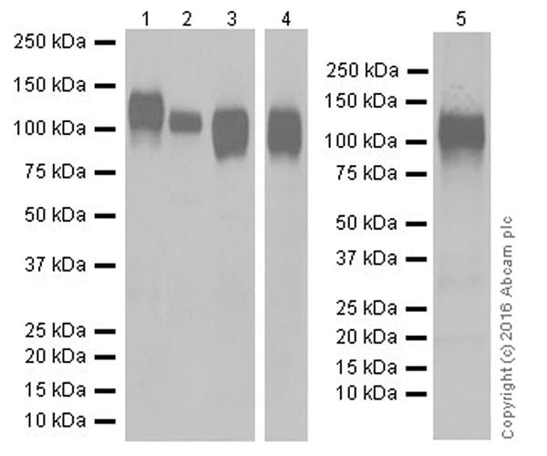 Western blot - Anti-CD31 antibody [EPR17260-254] (ab213175)