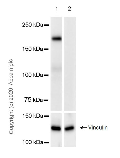 Western blot - Anti-DEPDC5 antibody [EPR20497-23] (ab213181)