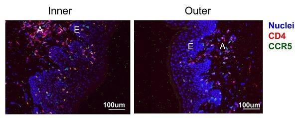 Immunohistochemistry (Formalin/PFA-fixed paraffin-embedded sections) - Anti-CD4 antibody [SP35] (ab213215)