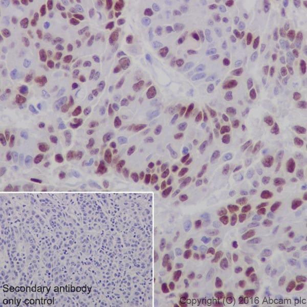 Immunohistochemistry (Formalin/PFA-fixed paraffin-embedded sections) - Anti-UHRF1 antibody [EPR18803-11] (ab213223)