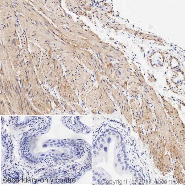 Immunohistochemistry (Formalin/PFA-fixed paraffin-embedded sections) - Anti-TAGLN/Transgelin antibody [EPR21206] (ab213273)