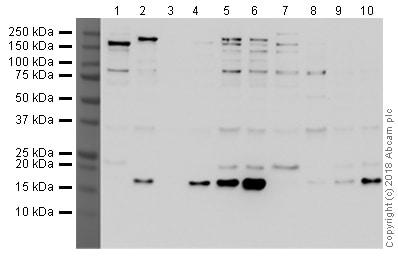 Western blot - Anti-Histone H3 (acetyl K27) antibody [EPR21218] (ab213279)