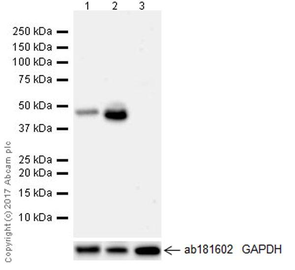 Western blot - Anti-BHMT + BHMT2 antibody [EPR20822] (ab213491)