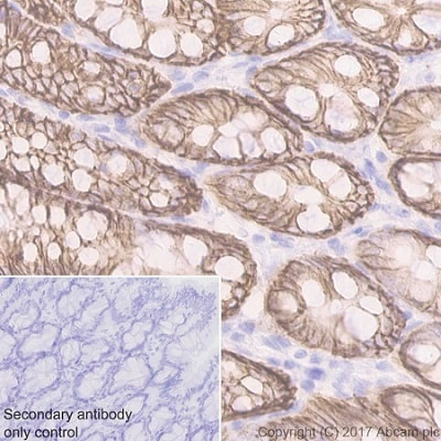 Immunohistochemistry (Formalin/PFA-fixed paraffin-embedded sections) - Anti-EpCAM antibody [EPR20533-266] (ab213501)