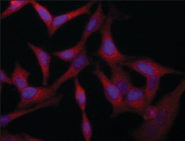 Immunocytochemistry/ Immunofluorescence - Anti-VAC14 antibody - C-terminal (ab213516)