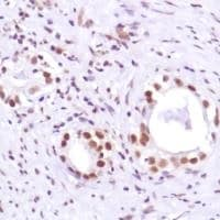 Immunohistochemistry (Formalin/PFA-fixed paraffin-embedded sections) - Anti-ATM antibody [SP224] - BSA and Azide free (ab213522)