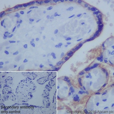Immunohistochemistry (Formalin/PFA-fixed paraffin-embedded sections) - Anti-PD-L1 antibody [EPR19759] (ab213524)