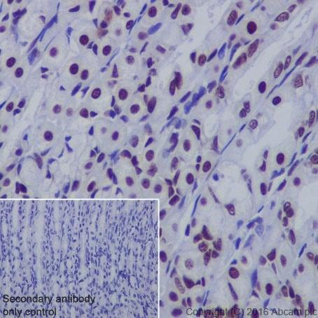 Immunohistochemistry (Formalin/PFA-fixed paraffin-embedded sections) - Anti-FUBP1/FBP antibody [EPR19208] (ab213525)