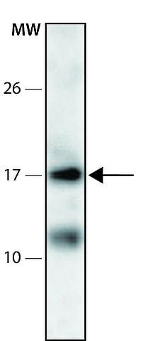Western blot - Anti-PPDPF antibody (ab213531)