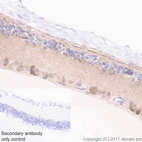 Immunohistochemistry (Formalin/PFA-fixed paraffin-embedded sections) - Anti-Optineurin antibody [EPR20654] (ab213556)