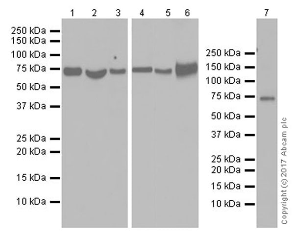 Western blot - Anti-Optineurin antibody [EPR20654] (ab213556)