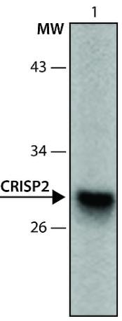 Western blot - Anti-CRISP2 antibody (ab213576)