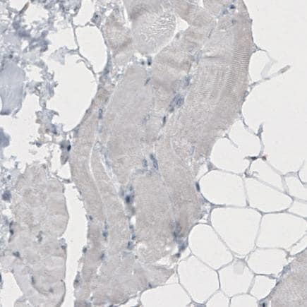 Immunohistochemistry (Formalin/PFA-fixed paraffin-embedded sections) - Anti-TLE3/ESG antibody [CL3573] (ab213596)