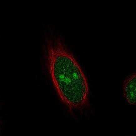 Immunocytochemistry/ Immunofluorescence - Anti-TLE3/ESG antibody [CL3573] (ab213596)