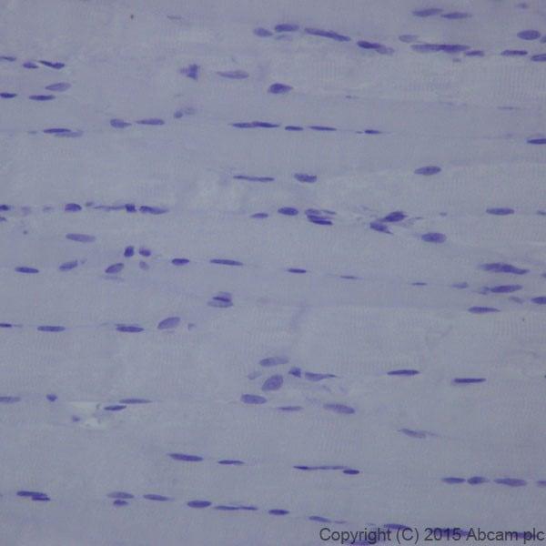 Immunohistochemistry (Formalin/PFA-fixed paraffin-embedded sections) - Anti-L1CAM antibody [EPR18750] - Low endotoxin, Azide free (ab213611)