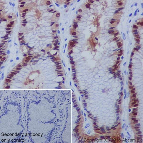 Immunohistochemistry (Formalin/PFA-fixed paraffin-embedded sections) - Anti-Annexin A10/ANXA10 antibody [EPR19507] (ab213656)