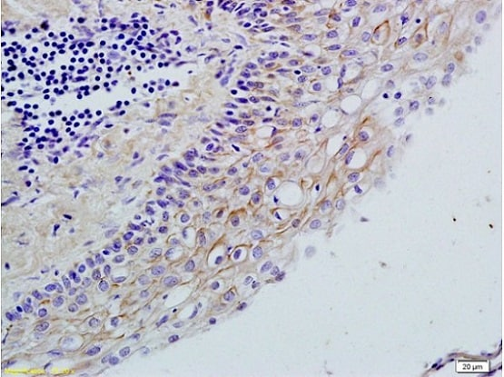 Immunohistochemistry (Formalin/PFA-fixed paraffin-embedded sections) - Anti-TLR2 antibody (ab213676)