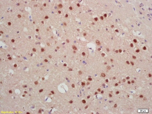 Immunohistochemistry (Formalin/PFA-fixed paraffin-embedded sections) - Anti-Jarid2 antibody (ab213679)