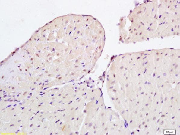Immunohistochemistry (Formalin/PFA-fixed paraffin-embedded sections) - Anti-FSP27 antibody (ab213693)