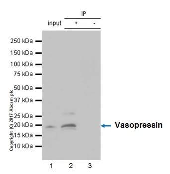 Immunoprecipitation - Anti-Vasopressin antibody [EPR20602] (ab213708)